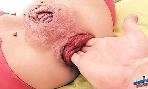 Off one's rocker prolapse milf slit fisting anal fisting - extreme anal dignitary